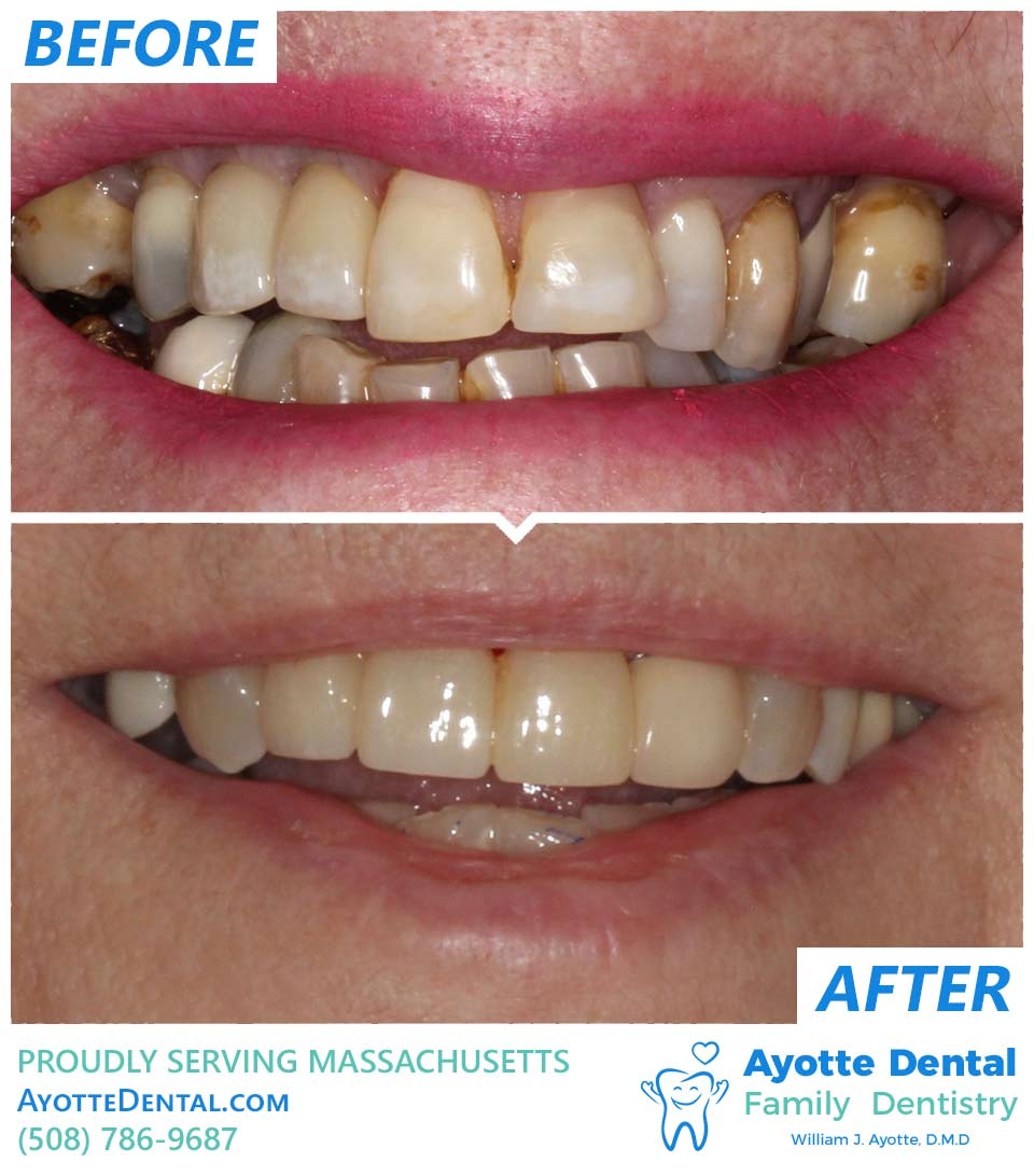Anterior bridge before and after.