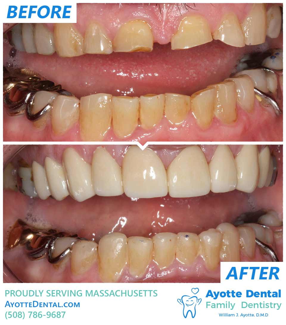 Dentation restoration before and after.