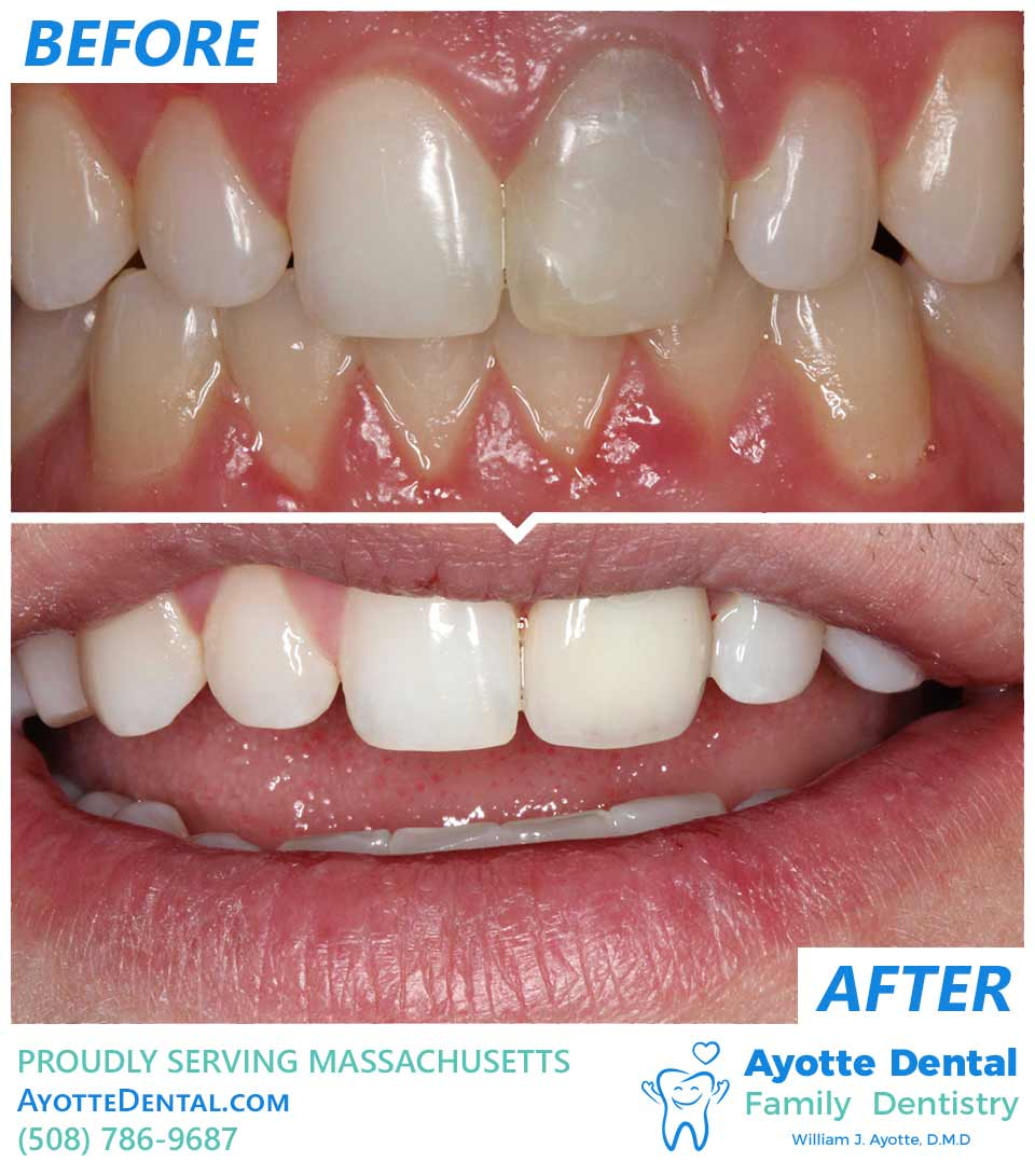 Discolored root canaled tooth restoration before and after.