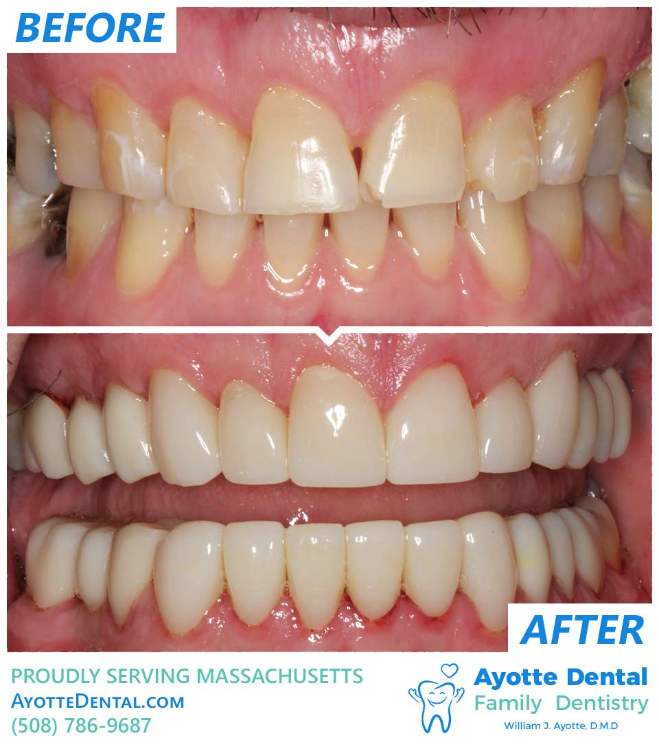 Full dental reconstruction before and after.