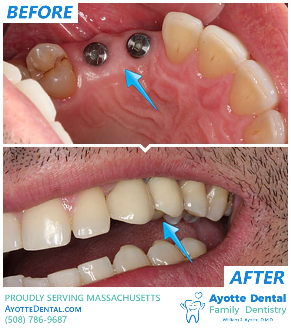 Two missing teeth replaced with implants before and after.