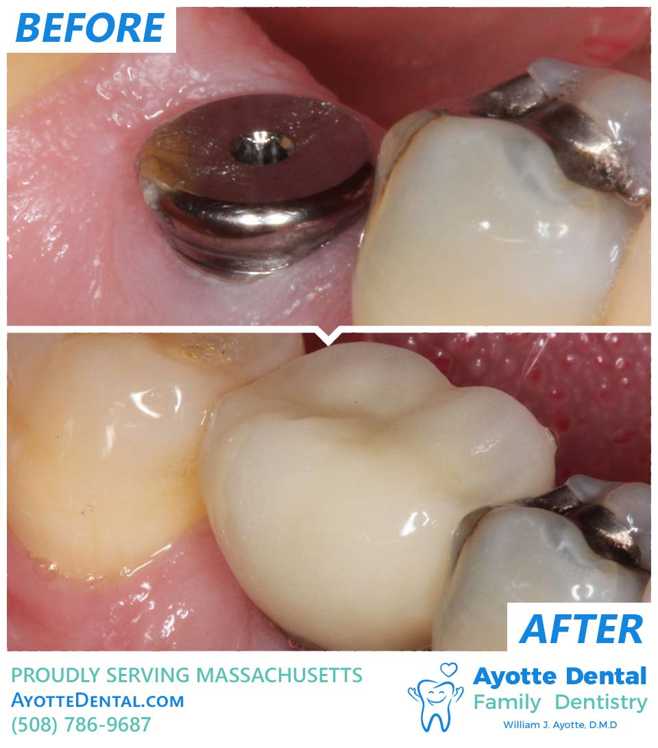 Dental implant before and after.
