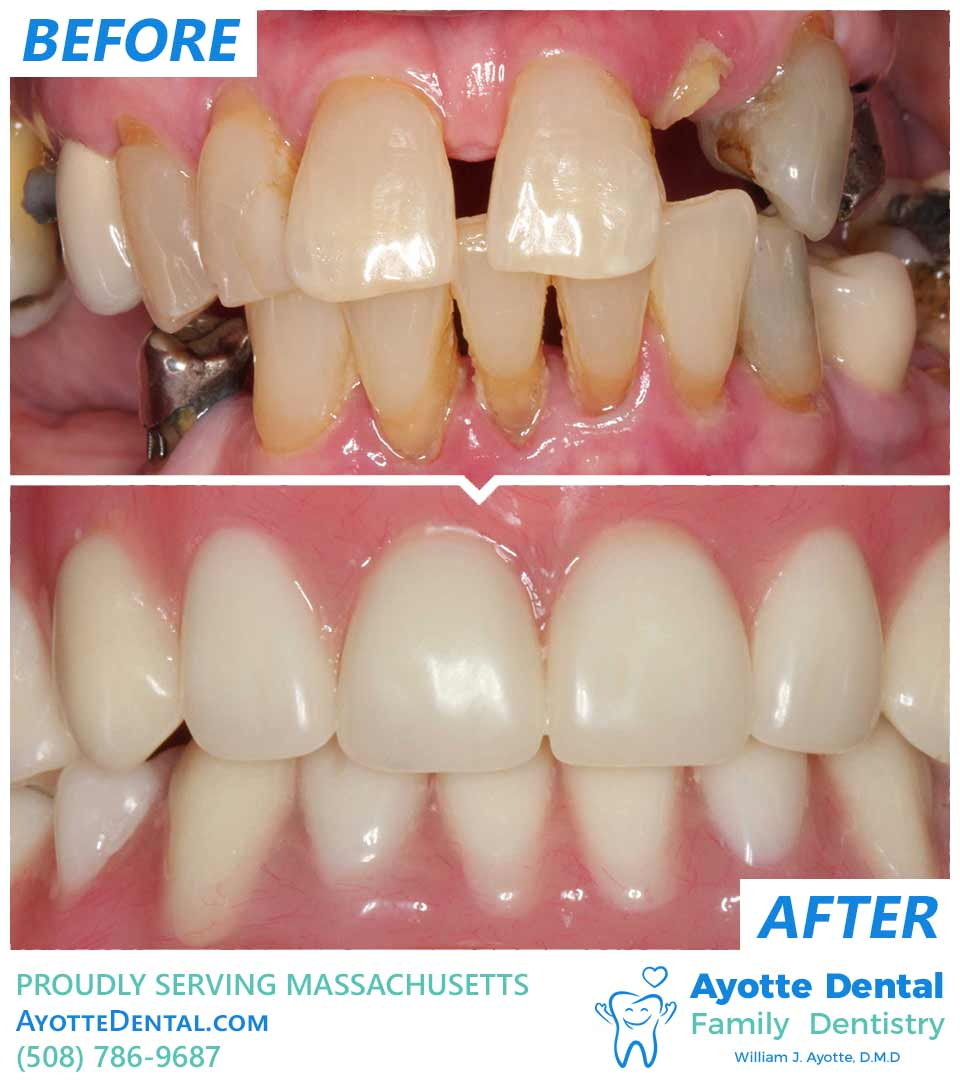 Implant retained dentures before after.