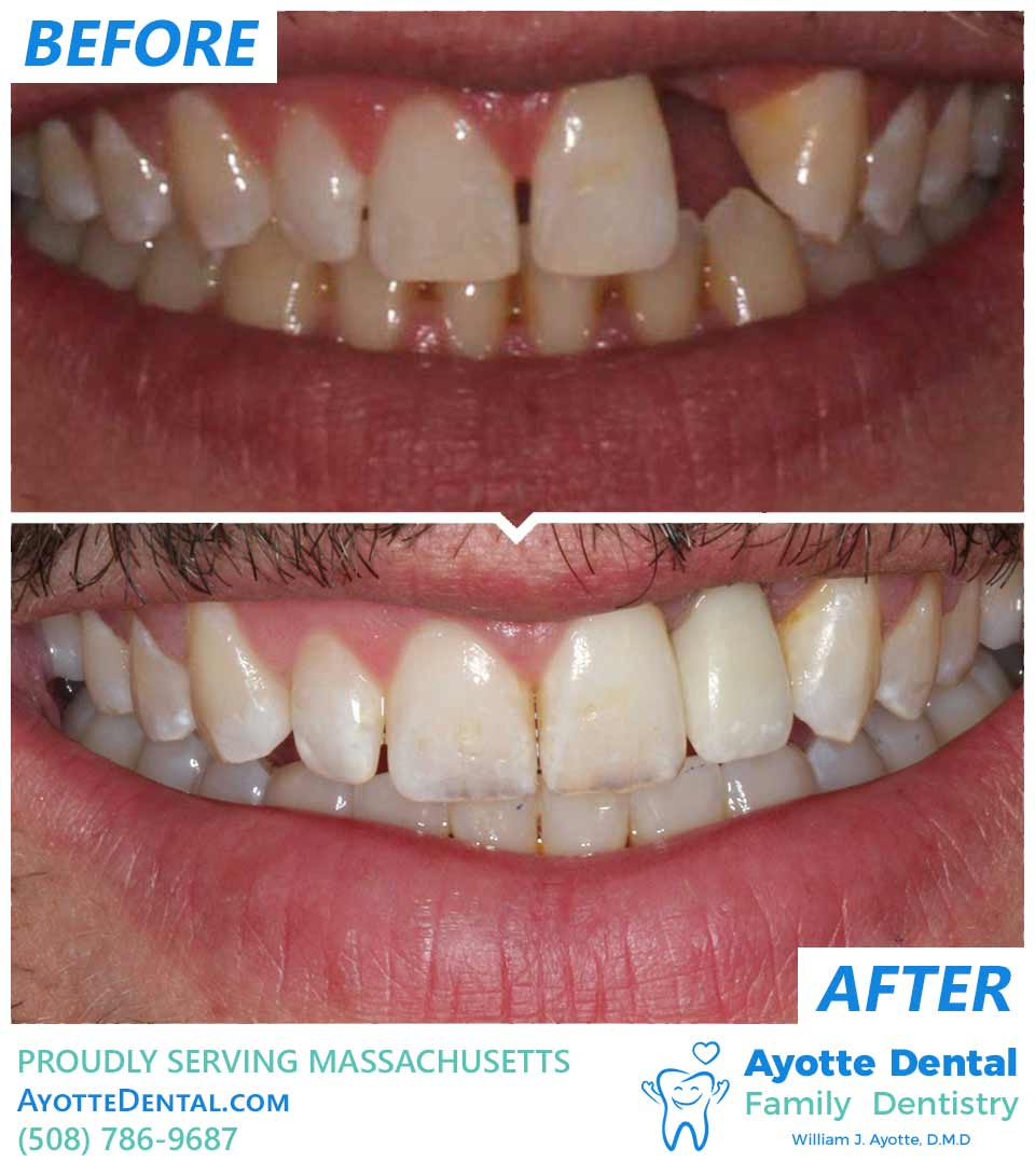 Replaced lost tooth with implant and crown before after.