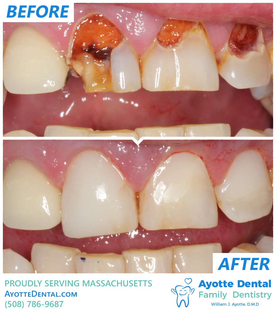 Smoking damage restoration before and after.